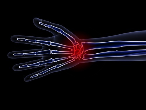 Wrist Pain-1.jpg